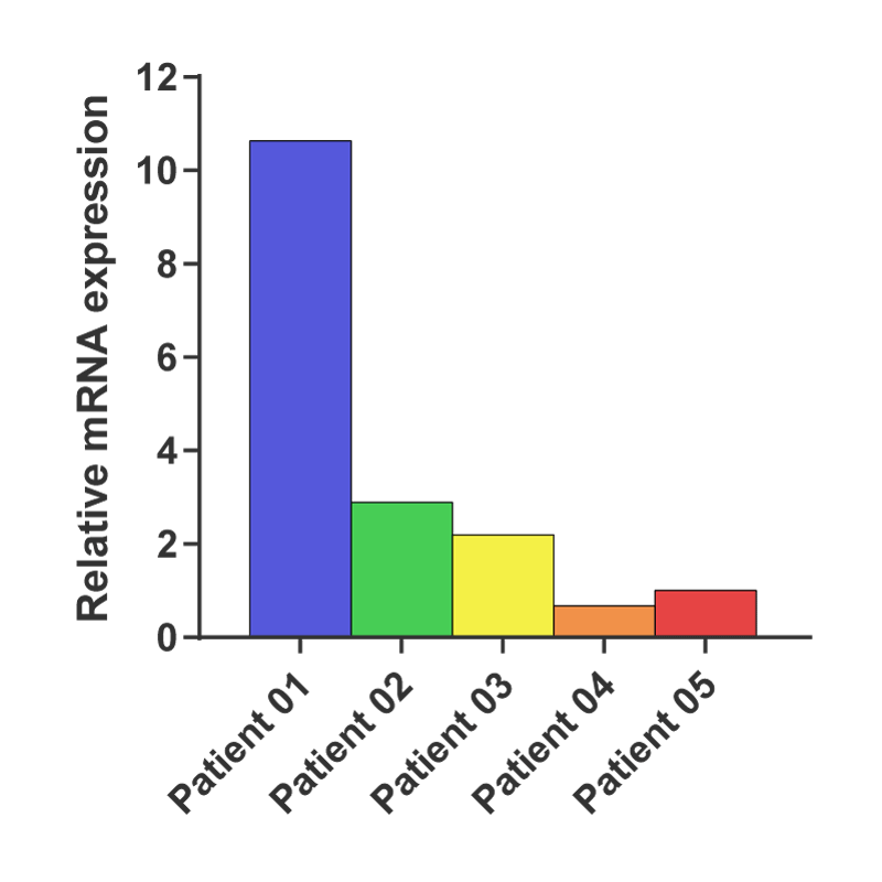 Differences in PD-L1 gene expression between primary samples, as shown by qPCR. PD-L1 expression in samples 04 and 05 is low compared to 'reference' sample 01 (> 10-fold difference). Expression values are calculated using ΔΔCq method, fold change is 2^(ΔCq PS 01 -ΔCq PS 0X)